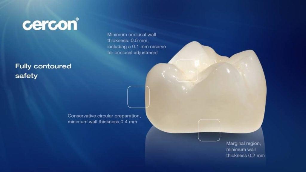 so sánh răng sứ cercon và cercon ht