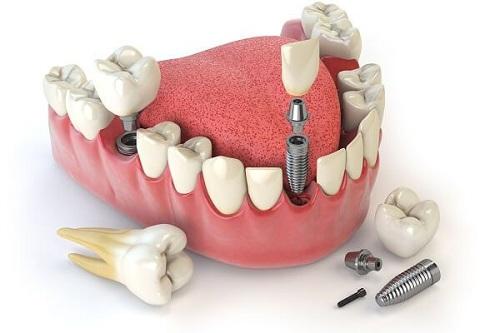 răng sứ kim loại và răng toàn sứ