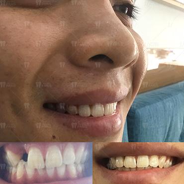 địa chỉ trồng răng implant không hôi miệng