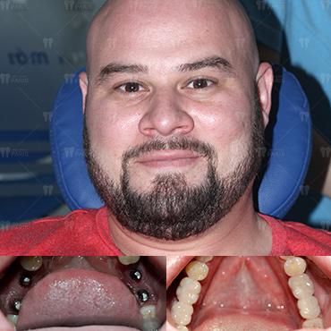 địa chỉ trồng răng implant an toàn