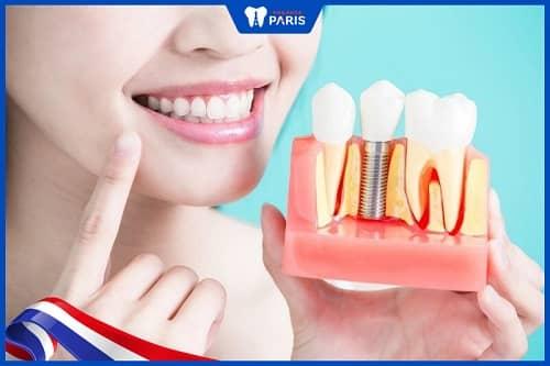 Trồng răng Implant không hôi miệng