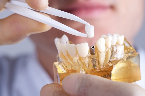 Trồng răng sứ cercon có tốt không