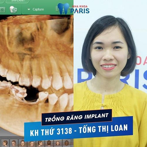 Liệu trồng răng sứ cercon có tốt không