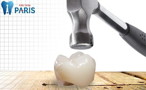 trồng răng sứ có bền không