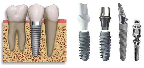 tuổi thọ của răng implant