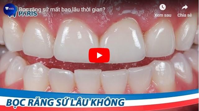 Video bọc răng sứ bao lâu