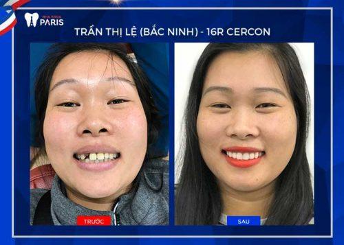 quy trình làm răng sứ cercon