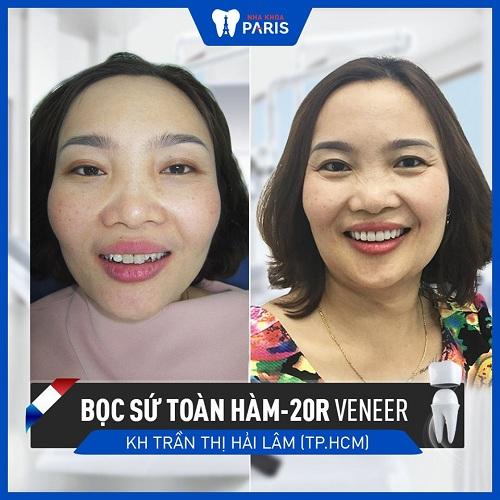 bảng giá dán răng sứ veneer