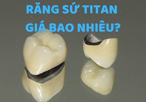 Báo giá răng sứ titan