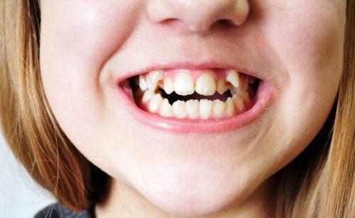 bé mọc răng khểnh