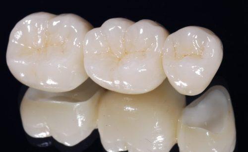 có nên bọc răng sứ không kim loại