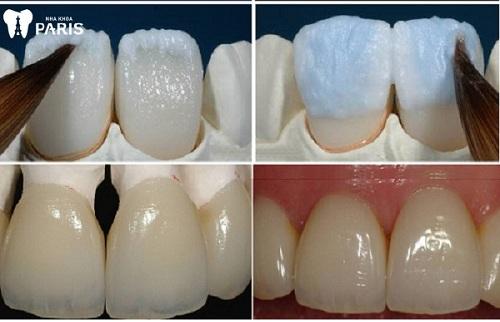 bọc răng sứ nha khoa Paris