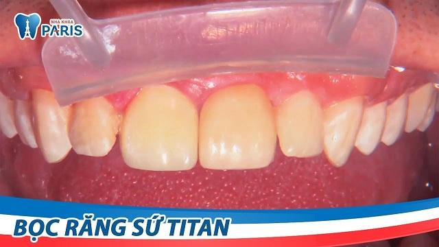 Bọc răng titan giá bao nhiêu