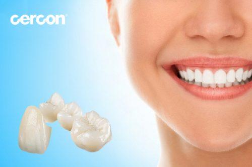 cách chăm sóc răng sứ cercon