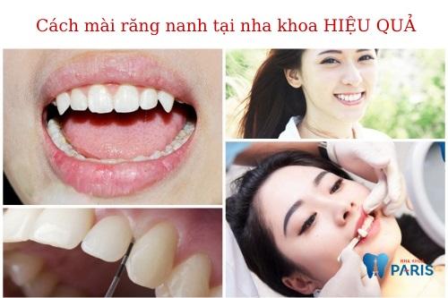 Cách mài răng nanh nhọn
