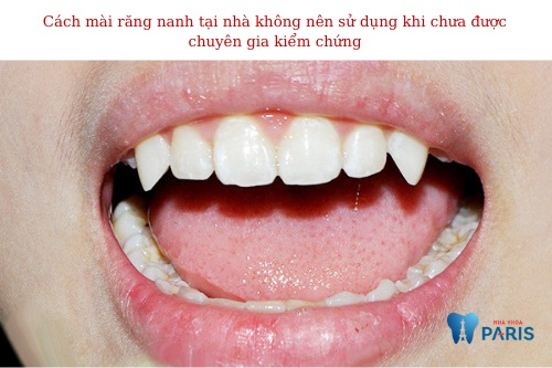 cách mài răng nanh tại nhà