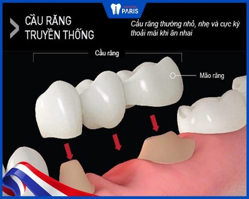 Có mấy loại cầu răng sứ?