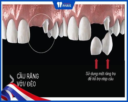 Có mấy loại bắc cầu răng sứ? Có bền không?