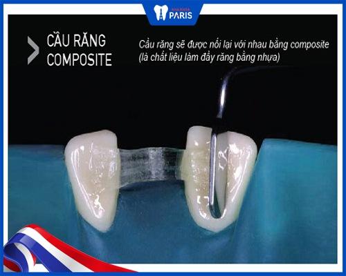 cầu răng sứ răng cửa