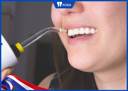 hướng dẫn chăm sóc, vệ sinh cầu răng sứ