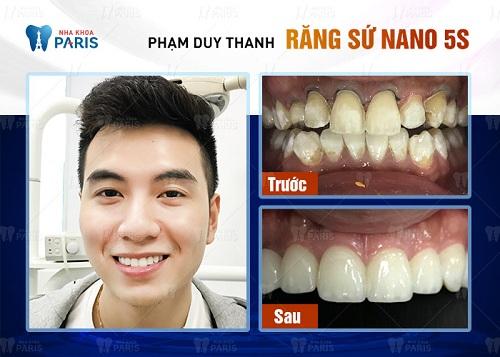 dán răng sứ giá rẻ