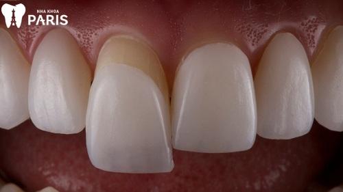 dán răng sứ loại nào tốt nhất