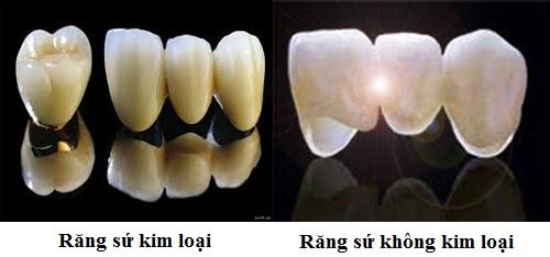 giá răng toàn sứ