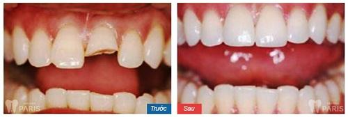 Hình ảnh răng sứ titan vita