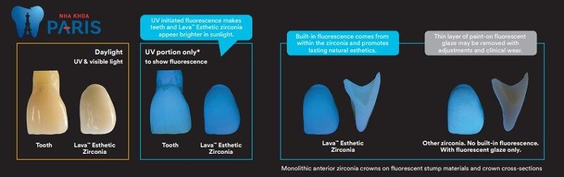 Răng sứ Lava Esthetic Fluorescent Full-Contour Zirconia