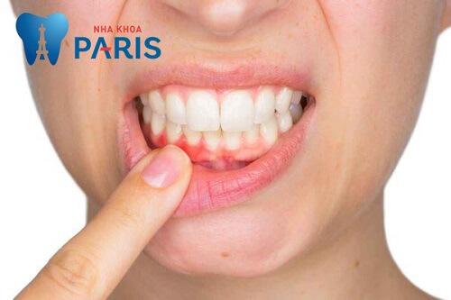lấy cao răng có bị tụt lợi