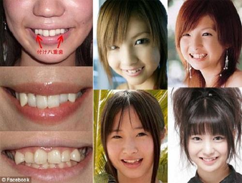 mài răng khểnh