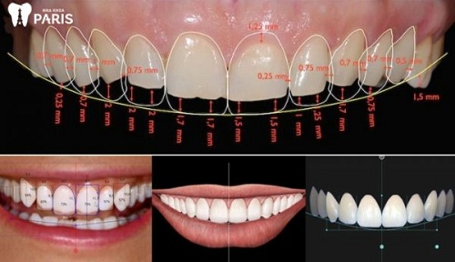 Phục hình răng bọc sứ nano 5s
