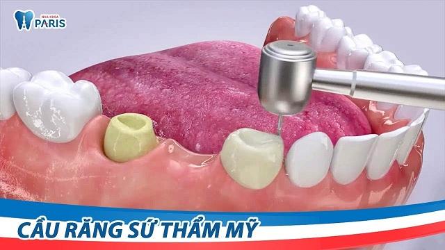 Video quy trình làm cầu răng sứ