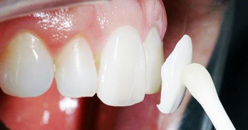 răng sứ không kim loại giá bao nhiêu