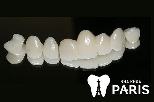 răng sứ loại nào tốt nhất