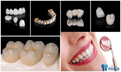 răng sứ titan có mấy loại