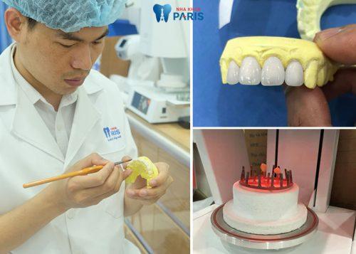 răng toàn sứ có mấy loại