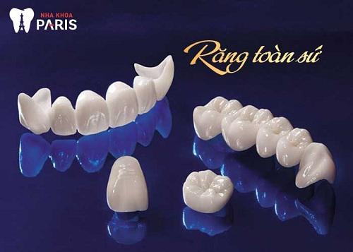 Răng toàn sứ là gì