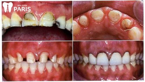 tác hại của việc mài răng sứ