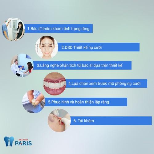 Quy trình thiết kế nụ cười DSD tại nha khoa Paris.