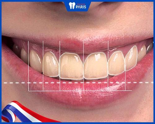 Tỷ lệ răng