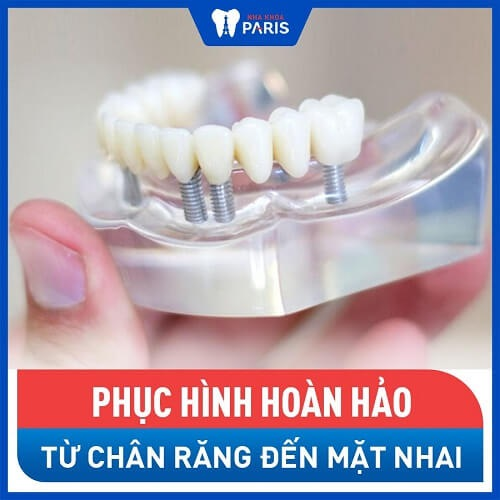 các loại răng sứ tốt nhất
