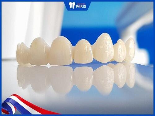 các loại răng sứ trên thị trường
