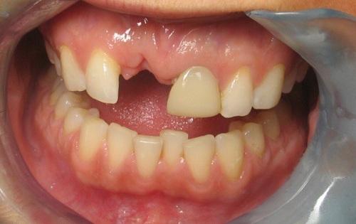 trồng răng sứ titan giá bao nhiêu
