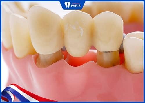 trường hợp nào nên làm cầu răng