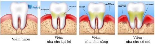bệnh răng miệng viêm nha chu