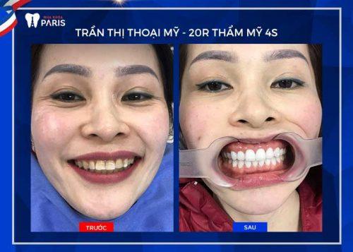 tại sao răng càng ngày càng hô