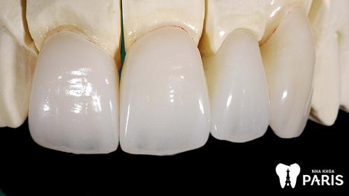 bọc răng sứ roland có tốt không vậy