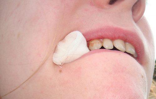 cách cầm máu sau khi nhổ răng
