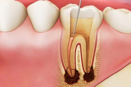 cách làm chết tủy răng tại nhà